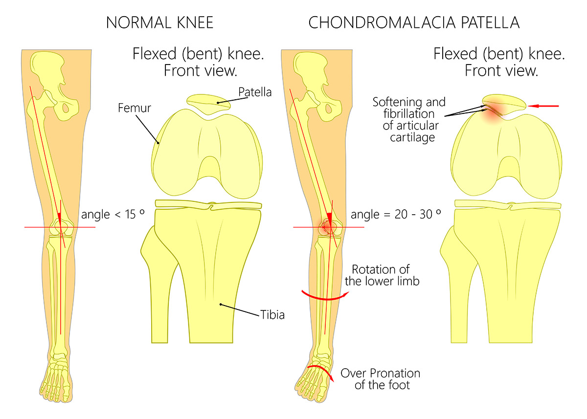 Knee anatomy orthopaedic surgeons in kenya the knee is made up of four bones the femur or thighbone is the bone connecting the hip to the knee the tibia or shinbone connects the knee to the ankle ccuart Choice Image