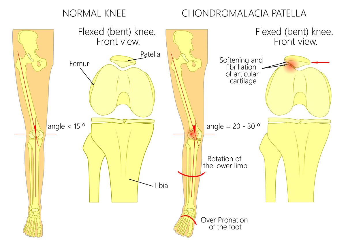 Knee Anatomy | Orthopaedic Surgeons in Kenya