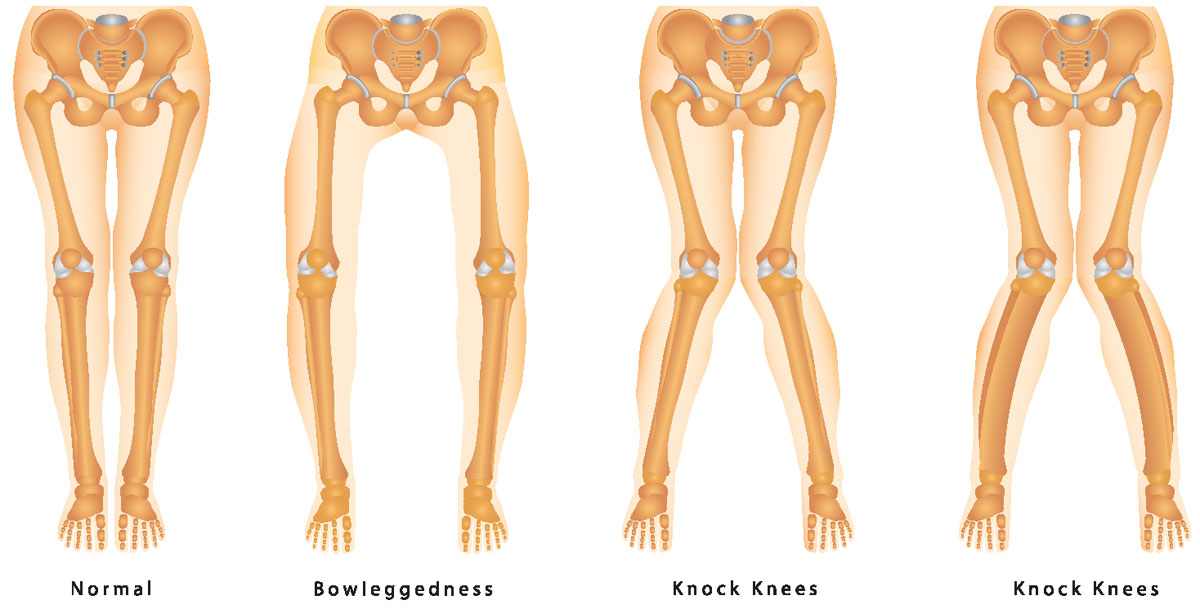 Knee Angular Deformities (Knock legs and Bow legs ...